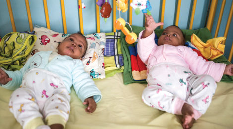 Madagascar's Health Minister Separates Conjoined Twins